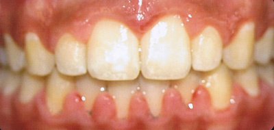 Class II Malocclusion After