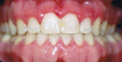 Class III Malocclusion After