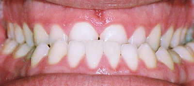 Class III Malocclusion Before
